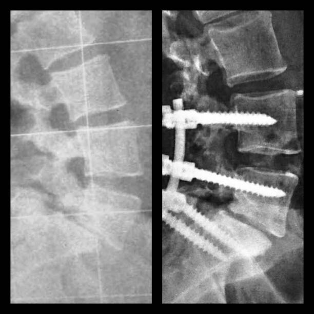 Reducción de una listesis lumbar