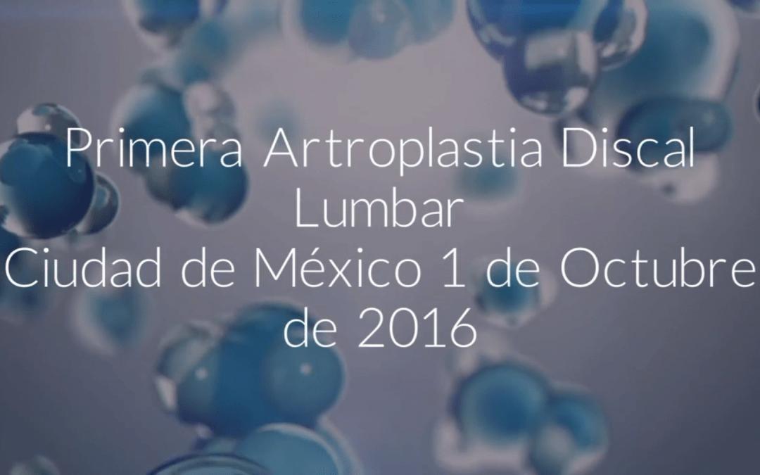 Primera Artroplastia Discal Lumbar practicada en México por la UIdCC