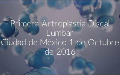Paciente mexicano: su experiencia tras la Artroplastia