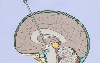 Cirugía mínimamente invasiva en tumores cerebrales