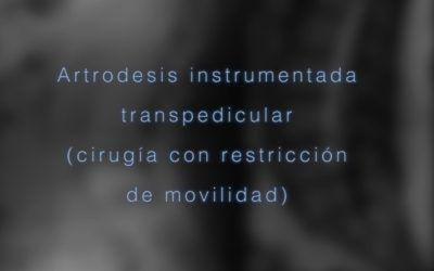 Artrodesis instrumentada transpedicular