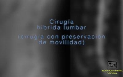Cirugia Hibrida Lumbar
