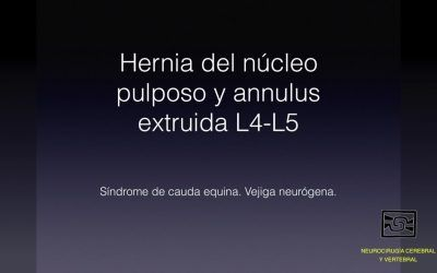 Hernia del núcleo pulposo y annulus extruída L4 – L5