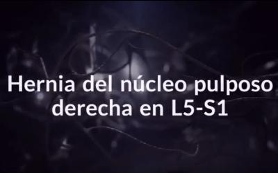 Hernia del Núcleo Pulposo derecha en L5 – S1