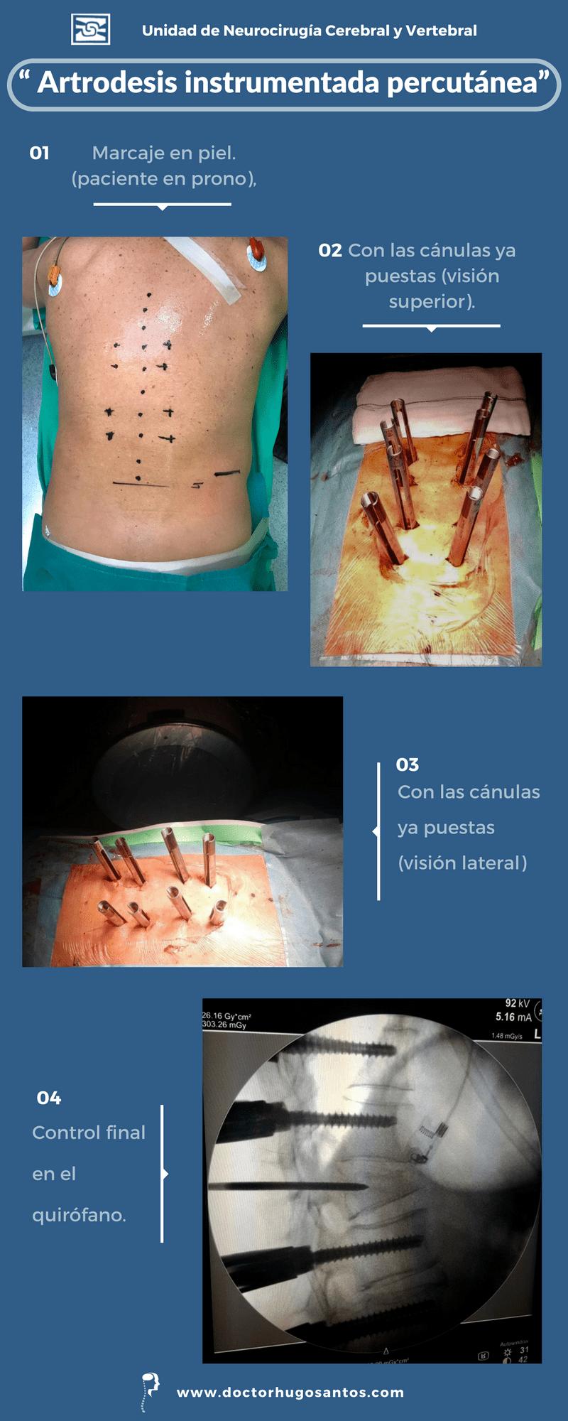 artrodesis instrumentada percutánea