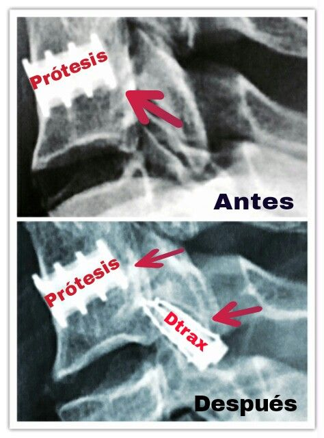 Imagen nº 2.- Antes y Después de la intervención y colocación de los Dtrax