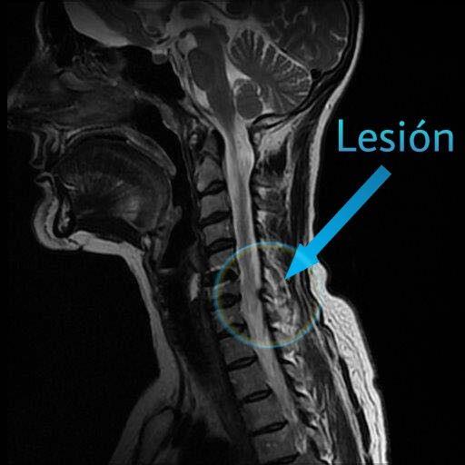 Imagen nº 1.- Resonancia magnética con la localización de la lesión del paciente.