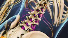 El nervio ciático y la  ciática