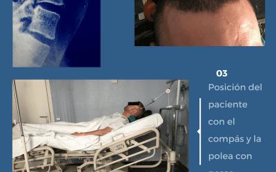 Tracción cervical y luxación vertebral