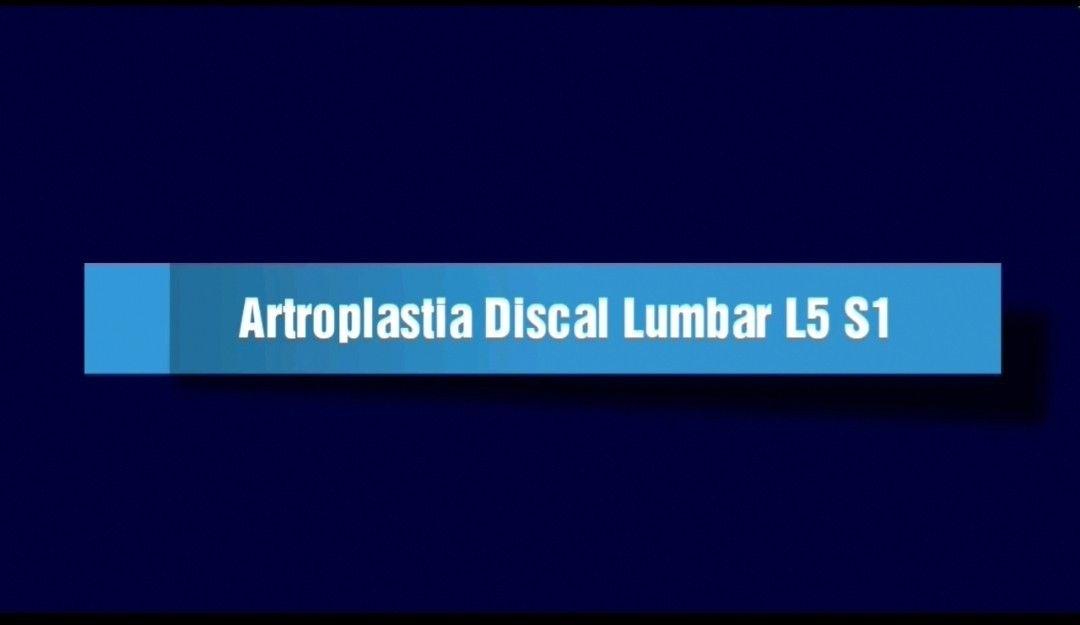 Artroplastia Discal Lumbar en L5-S1