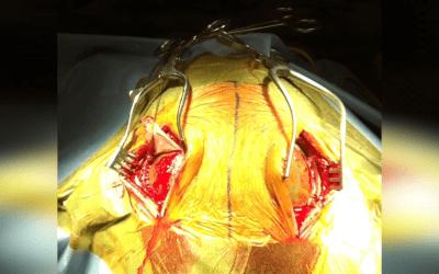 Hematoma subdural crónico bilateral