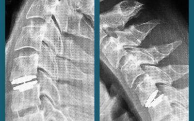 Hernias Cervicales: sustitución de discos intervertebrales por prótesis